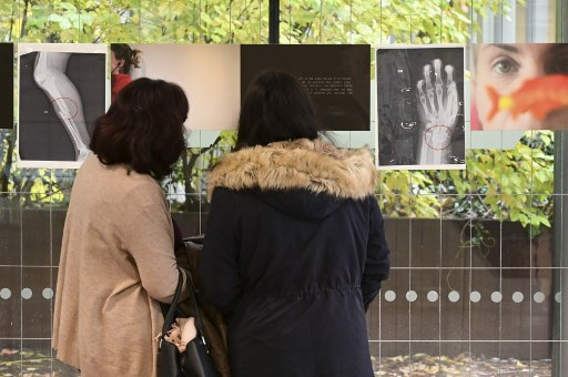 Violence against women: X-rays of broken bones show the scale of Italy's problem